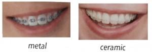 metal ceramic braces