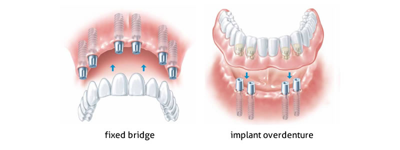 implants-all-teeth-missing
